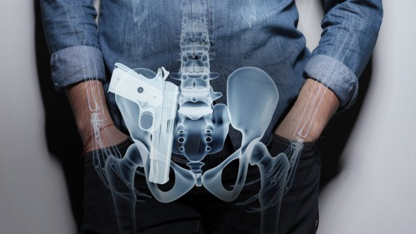 Appendix Carry Position